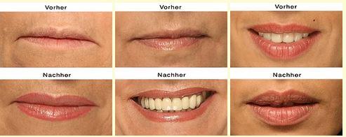 lippenkonturen mit permanent makeup